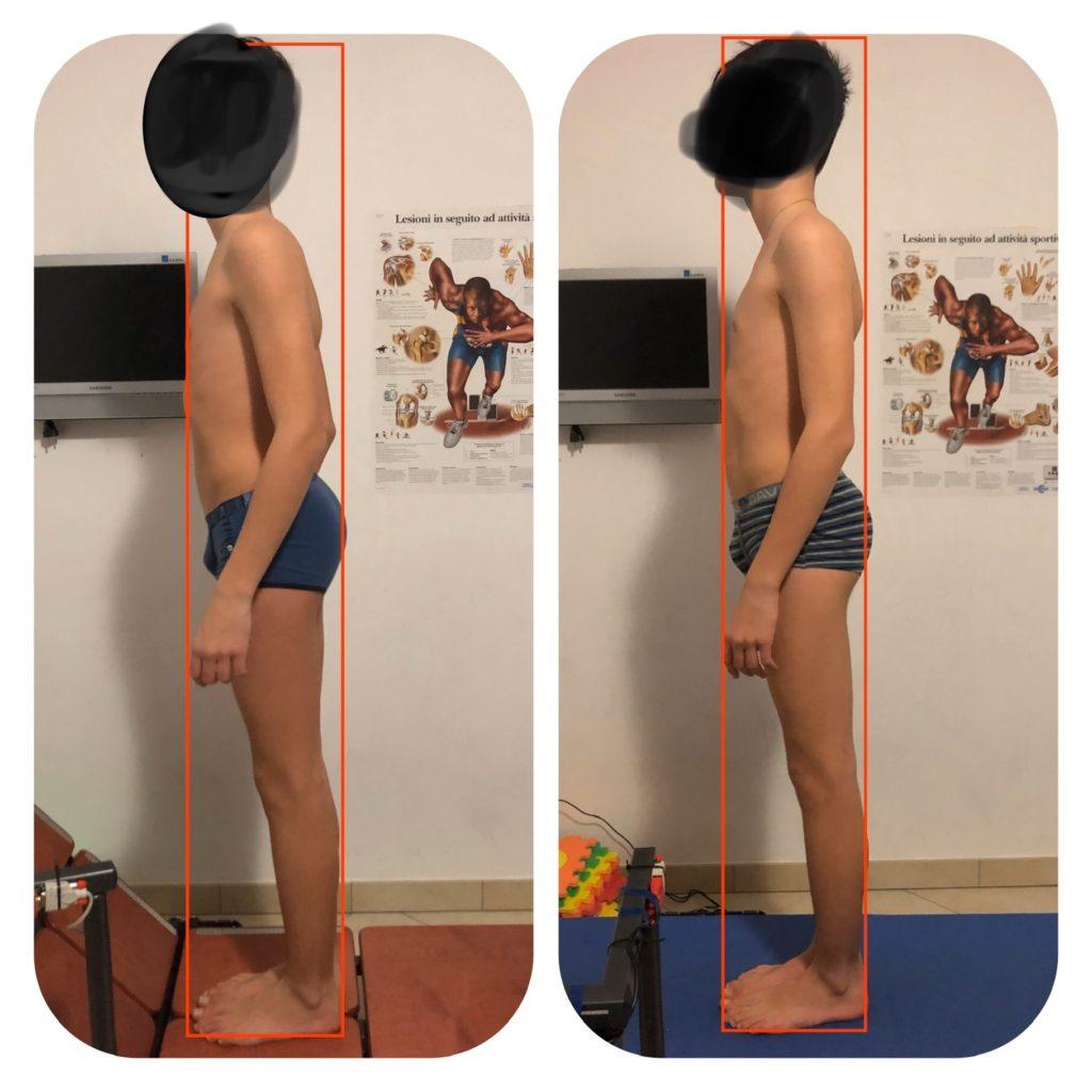 postura e adolescenza
